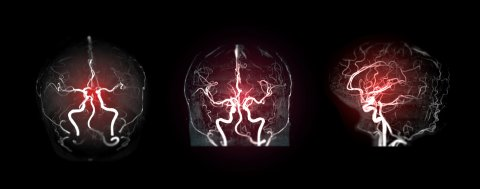 Collection of MRA brain or Magnetic resonance angiography image ( MRA ) of cerebral artery in the brain for detect stroke disease.